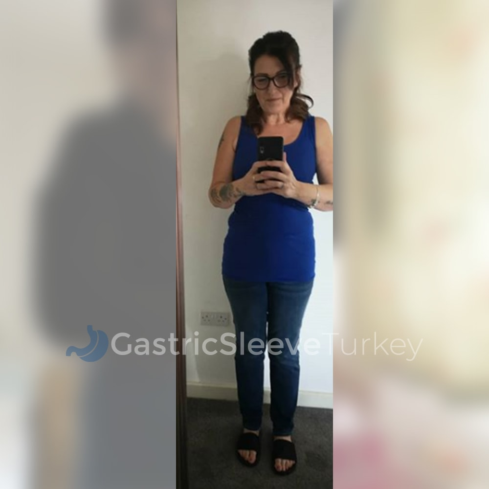 jo-after-7-months-gastric-sleeve
