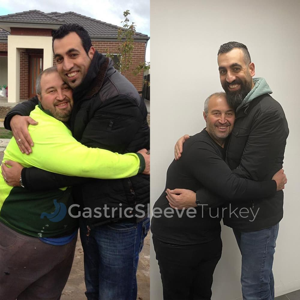 zafer-before-gastric-sleeve